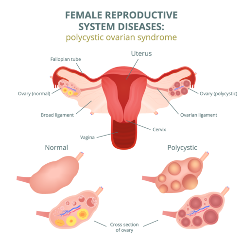 How to Get Rid of PCOS